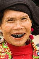 the black teeth of a Black Lu hilltribe woman in Tam Duong Vietnam  The married Lu women color their teeth with lacquer from trees to prevent tooth de...