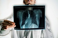 Doctor´s x-ray chest