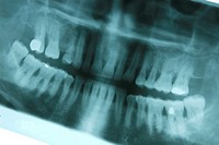 panoramic radiography of mouth