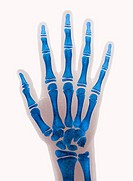 Coloured X ray of the right hand and fourth finger of a ten years old boy  No fracture or contusion visible