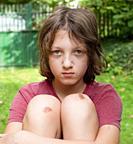 Boy with bruised knee caps in the garden.