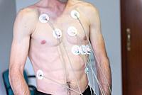 Exercise stress test or effort electrocardiogram.