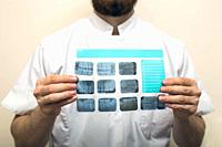 Image of male doctor or dentist holding and looking at old dental x-ray, analyzing close-up.