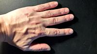 Hand of a man in various states on a black the background.