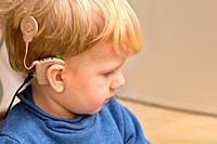 A Boy With A Hearing Aids And Cochlear Implants.