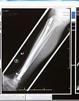 Canada, BC, North Vancouver. X-ray of broken leg repair. Fibula and tibia.