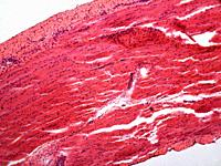 Microphotography of striated muscle tissue.