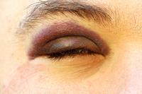 Black eye.