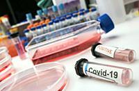 Vial pcr of SarsCov2 coronavirus, conceptual image.