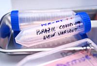 Several covid-19 positive research vials of the new Brazilian variant in a laboratory, conceptual image.