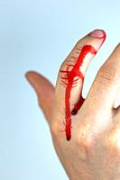 finger injury with blood bleeding on hand, finger cut closeup with copy space space for text.
