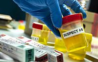 Forensic police take urine bottle of murder suspect to crime lab for analysis, concept image.