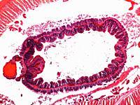 Cross section of earthworm. Lumbricus terrestris.