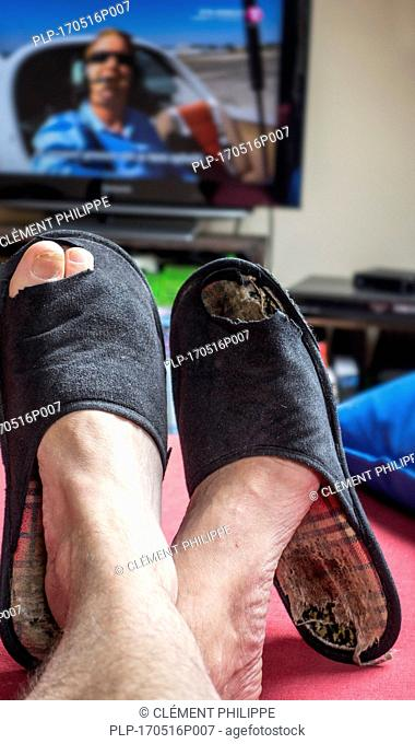 Couch potato, lazy man in comfy chair wearing worn slippers with big toes sticking through and watching television set in living room
