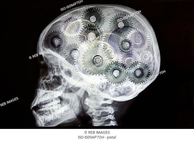 X-ray of skull with cogs as brain, digital montage