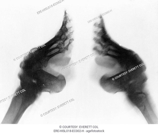 X-ray of a woman's bound feet, China. Ca. 1890-1923