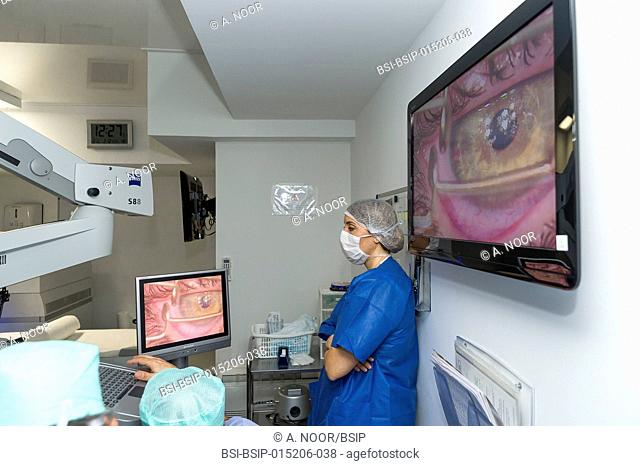 Reportage at the New Vision clinic in Nice, France. This clinic is one of the main centres for refractive surgery in France
