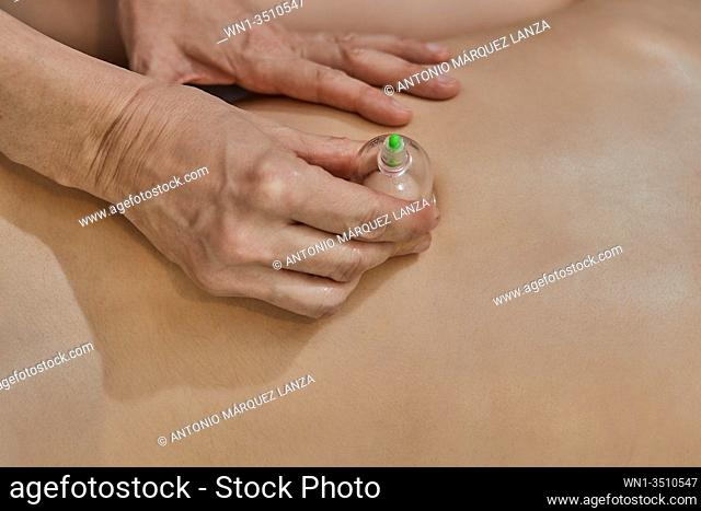 Woman laying on chest with cupping treatment on back with a blue towel
