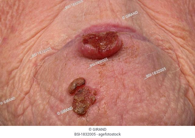 Lip epithelioma