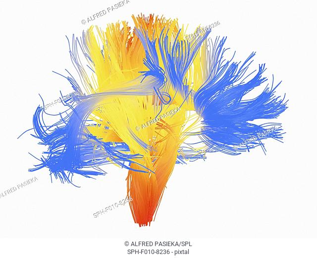 White matter fibres. Coloured 3D diffusion spectral imaging (DSI) scan of the bundles of white matter nerve fibres in the brain, depicting mirror neurons