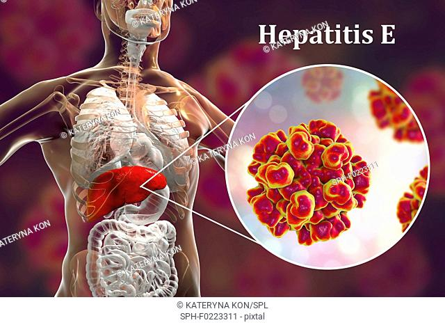 Hepatitis E infection, illustration