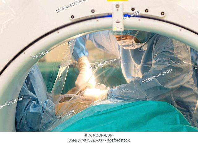 Reportage in the orthopedic surgery operating theatre in Pasteur 2 Hospital, Nice, France. Medullary liberation and arthrodesis in a patient suffering from...
