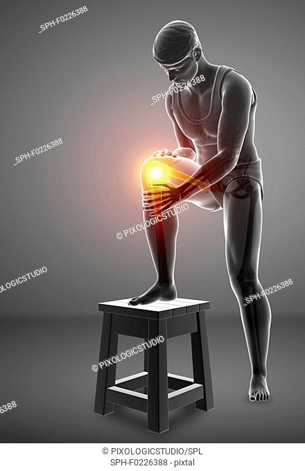 Man with knee pain, illustration