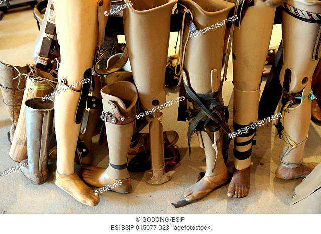 Various prostheses are pictured at the documentation and rehabilitation center COPE for victims of mines and cluster munition. Vientiane
