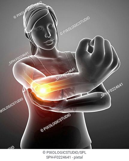 Woman with elbow pain, illustration