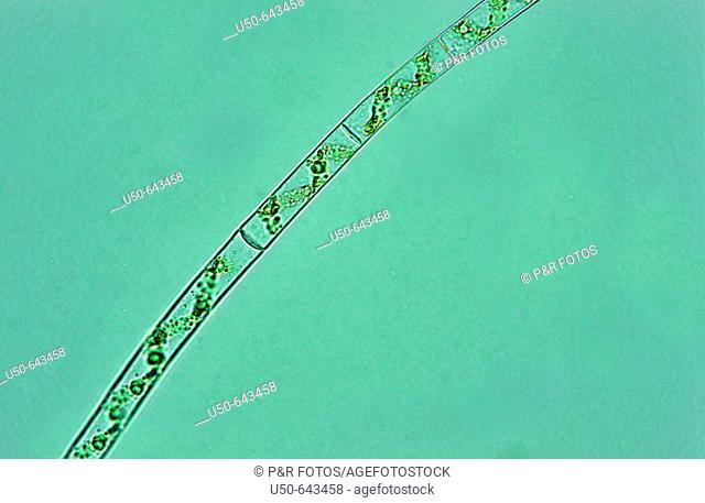 Microscopic green algae, Spirogyra sp., Gamophyceae: Zygnematales: Zygnemataceae (400x). Photomicrography