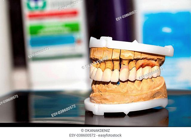 Dental Prosthesis Porcelain Zirconium Tooth