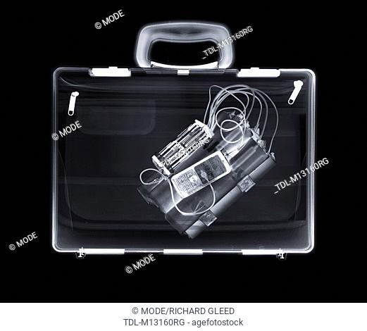 X-ray of a bag containing a bomb