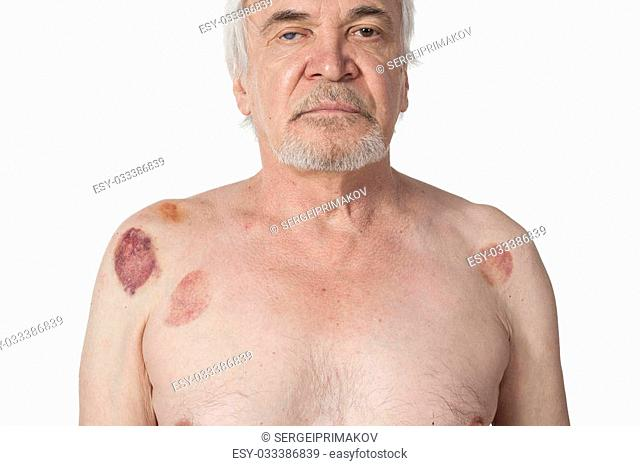 Multiple vacuum cup of medical cupping therapy on hirudo medicinalis human body.Hematoma after removing medical cans