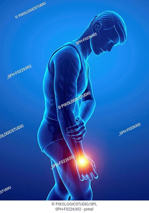 Man with wrist pain, illustration