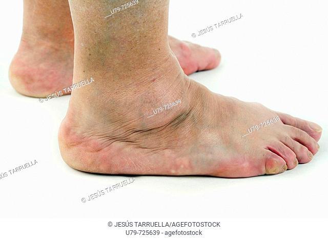 Feet patients older woman
