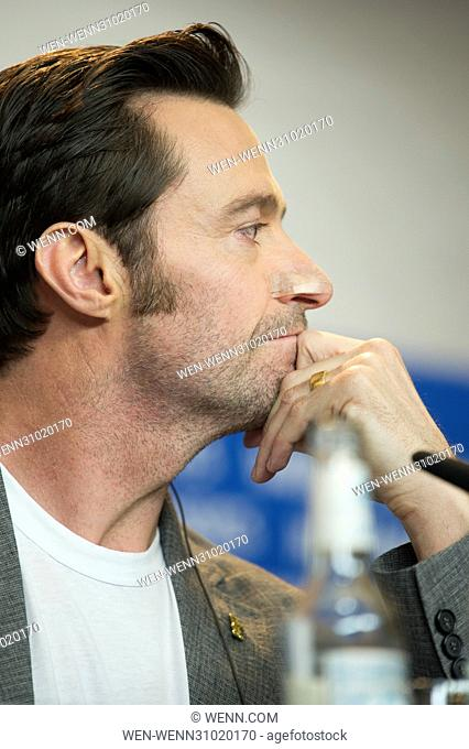 "Hugh Jackman wears a plaster over his recent skin cancer operation during """"Logan"""" press conference at the 67th International Berlin Film Festival (Berlinale)..."