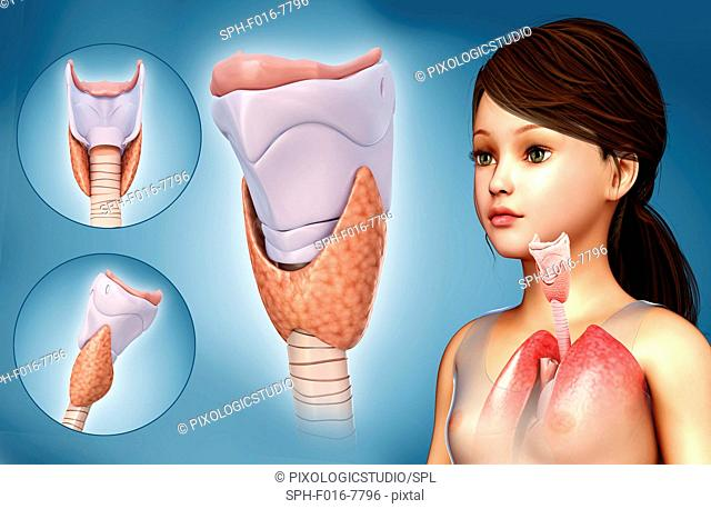 Illustration of a child's thyroid cartilage