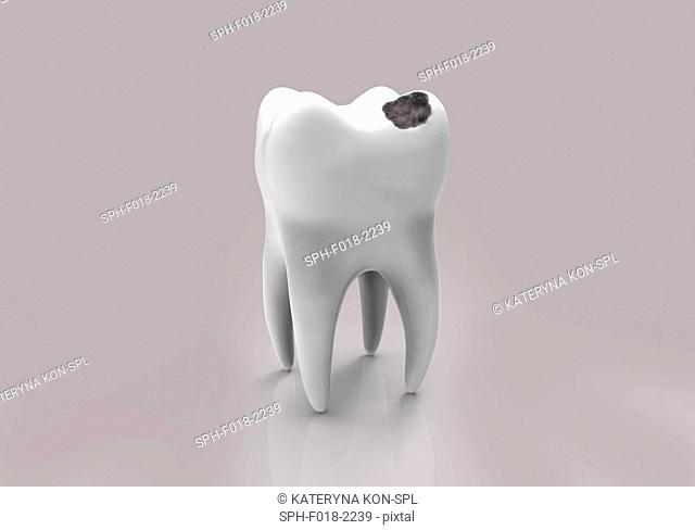 Tooth decay. Computer illustration of a tooth with a cavity