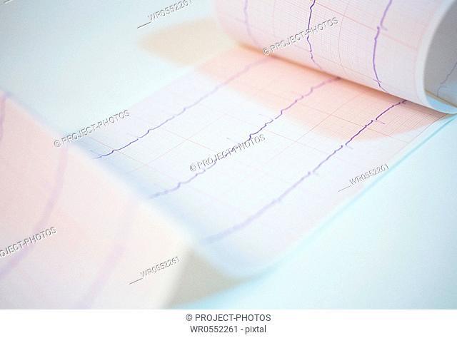 Graph of an ECG heart electrocardiograph