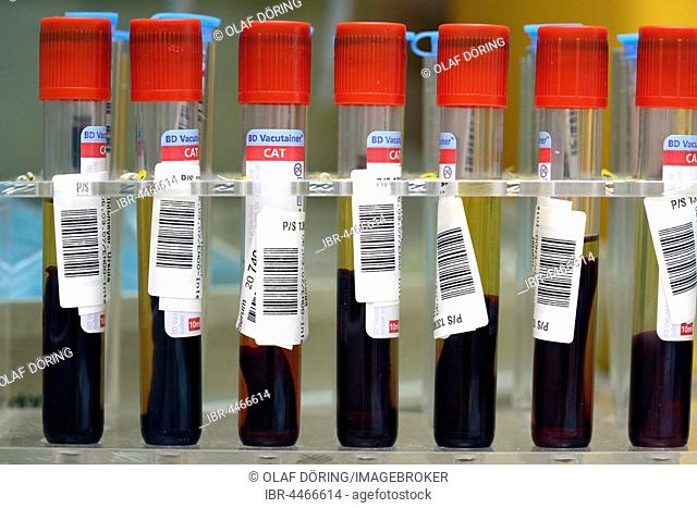 Blood samples in medical laboratory, Hamburg, Germany