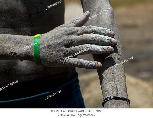 Borana tribe man arms wounded after diving in the volcano crater to collect salt, Oromia, El Sod, Ethiopia