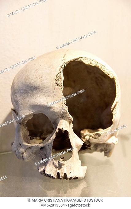 Damaged human skull