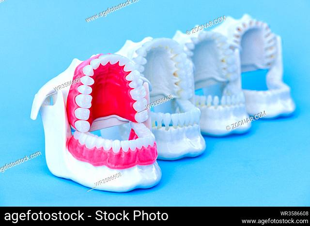 Dentist orthodontic teeth models with jaws opened on blue background
