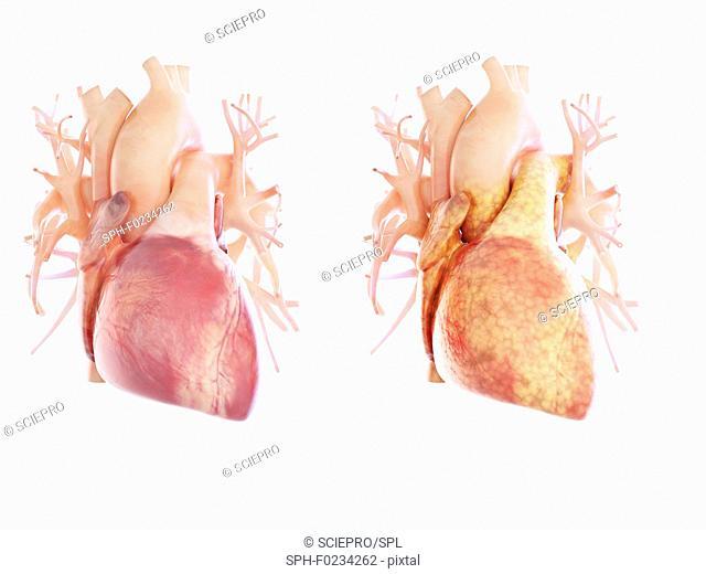 Illustration of a fatty heart