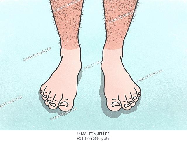 Man with sunburned, hairy legs