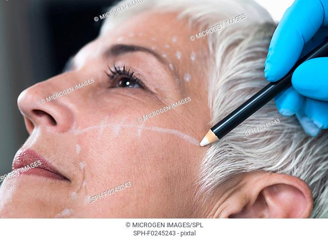 Doctor's hand in blue surgical glove marking senior women's face for cosmetic injections