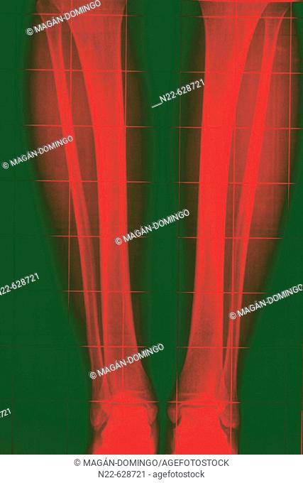 Normal teleradiography of tibia and fibula