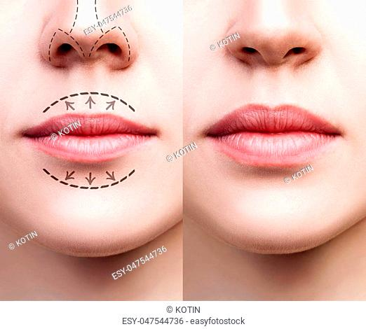 Beautiful lips of young woman. Before and after lips filler injections. Fillers concept