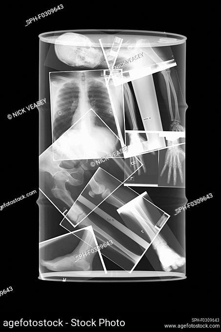 Oil drum skeleton, X-ray