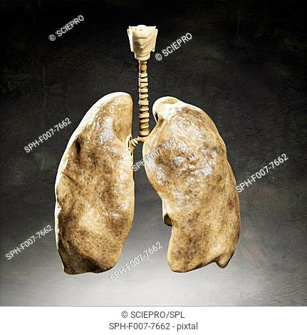 Smoker's lungs, computer artwork